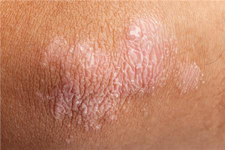 Pycnogenol® Found to Improve Psoriasis Symptoms